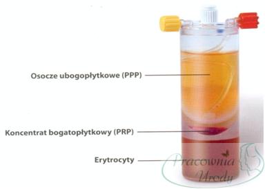 osocze-bogatoplytkowe-mezoterapia-estetyczna